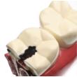 Caries, fogszuvasodás modell  8x9x5 cm műanyag- 10x nagyítás