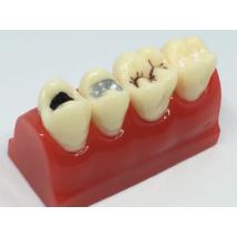 Caries, fogszuvasodás, barázdazárást szemléltető  modell  5 x1,5x3 cm-  kb 3 x nagyítás