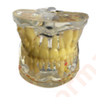 Fogsor modell,átlátszó- vegyes fogazat
