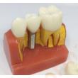 Implantátum és híd szemléltető modell- 10x nagyítás